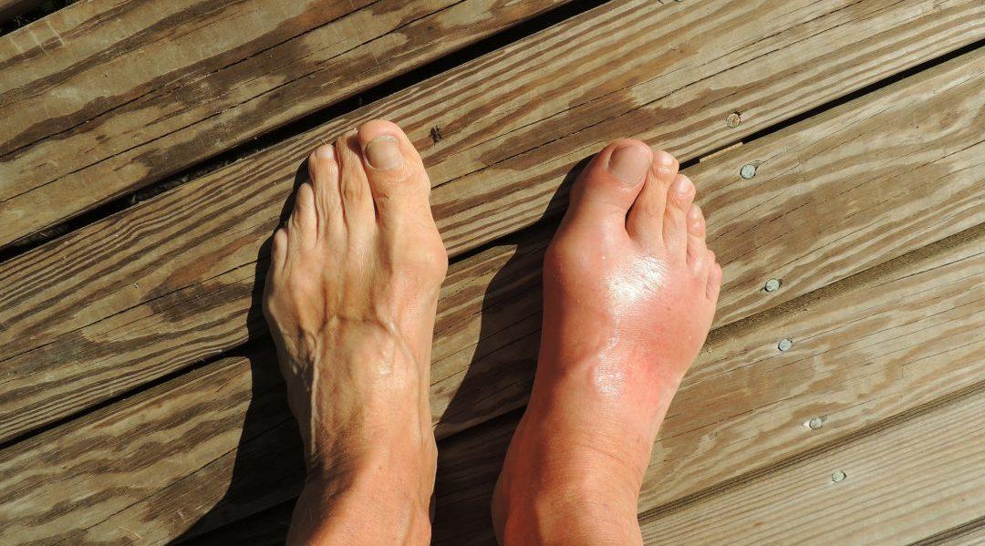 gallery-feet-gout-koszveny